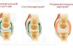 Ревматоидный артрит - причина субхондрального склероза тазобедренного сустава