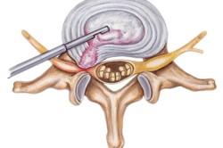 Принцип микродискэктомии при межпозвоночной грыже
