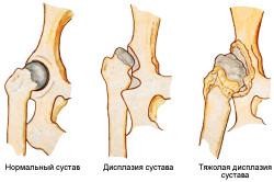 Дисплазия суставов врожденного типа - предпосылка развития артроза