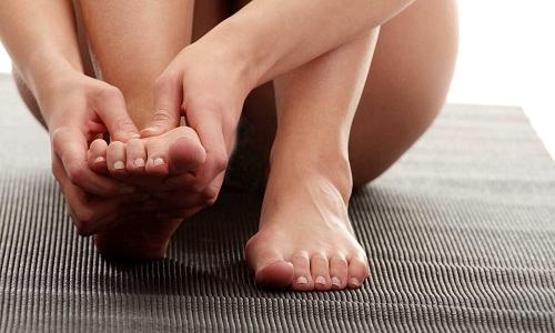 Проблема подагры на ногах
