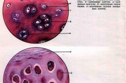 Хрящевая и костная ткани в лучезапястном суставе