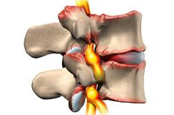 Лечение межпозвоночной грыжи тренажером для спины