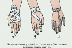 Повязки на кисть и лучезапястный сустав