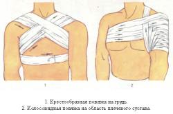 Повязки при травмах плеча