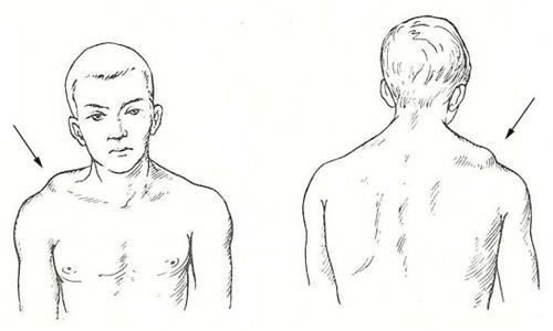 Какую диагностику проходить при реактивном артрите