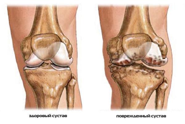 разрушение сустава колена что это