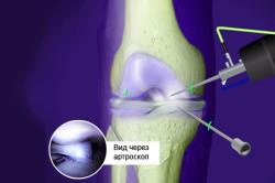 Схема дебридмента коленного сустава