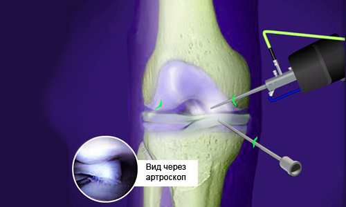 артроскопический дебридмент коленного сустава