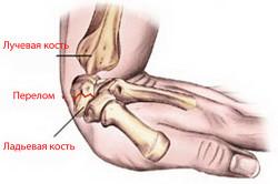 Схема перелома лучезапястного сустава
