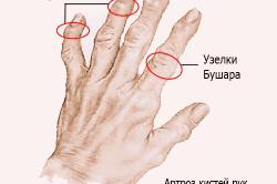На пальцах рук появились шишки фото