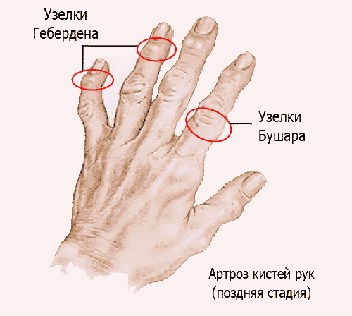 Шишка на суставе пальца руки: причины и лечение, признаки ...