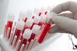 Сдача анализов для определения заболевания