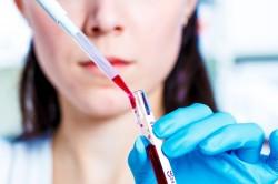 Исследование крови при ревматоидном артрите