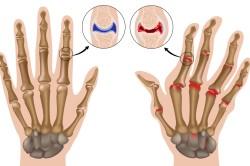 Схема артрита суставов пальцев