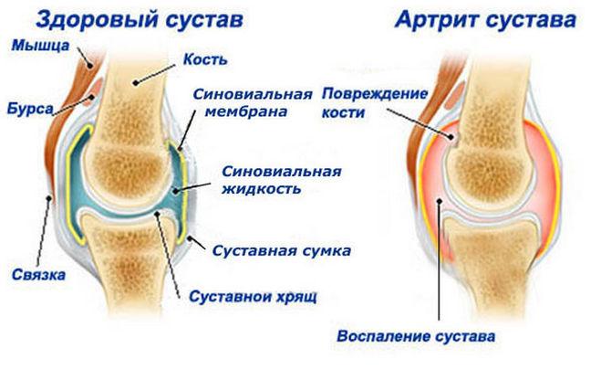 Доврачебная помощь при вывихе плечевого сустава