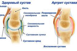 Здоровый сустав и артрит сустава