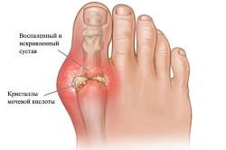 Схема артрита большого пальца ноги