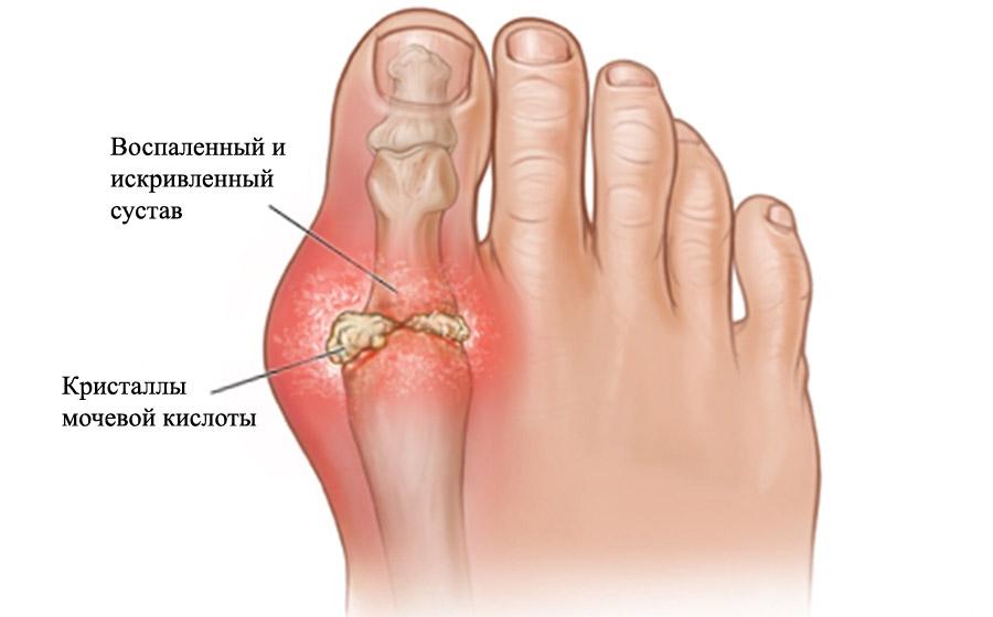 лечение вывиха пальца ноги