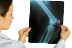 Рентгеновский снимок пораженного сустава