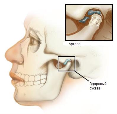 Поддерживающий корсет при остеохондрозе