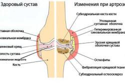 Схема артроза суставов