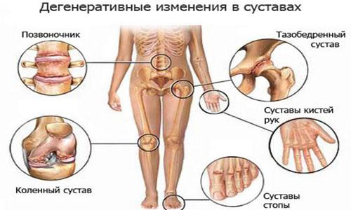 вермокс от паразитов в организме человека