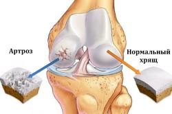 Схема коленного сустава с артрозом и нормальным хрящом