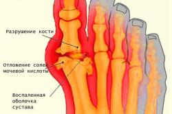 Схема подагры на ногах