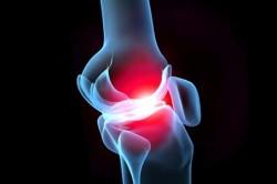Воспаление сустава - причина анкилоза