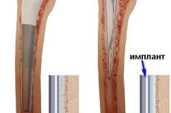 Виды протезирования бедра