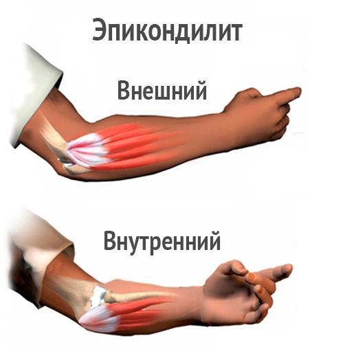 Симптомы грибка на ногах на пятке