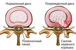 Отличие нормального диска от больного дорзальной грыжой
