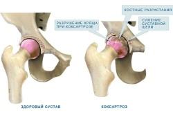 Схема коксартроза тазобедренных суставов