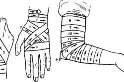 Крестообразная повязка на локтевой и кистевой сустав