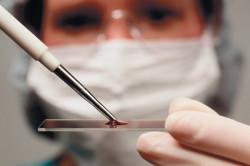 Анализ крови для диагностики подагры