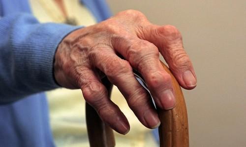 Опухание суставов пальцев рук