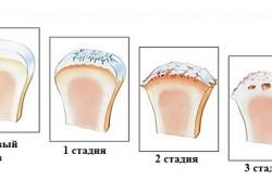 Стадии остеопороза