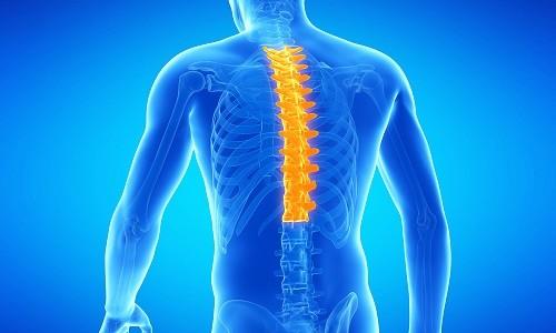 Проблема остеохондроза грудного отдела