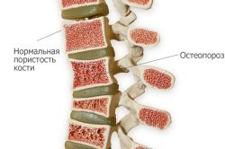 Лечение остеопороза скипидаром