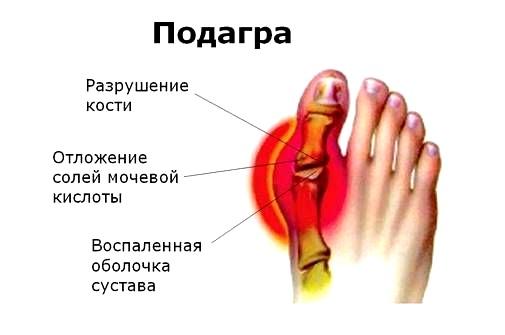 Подагра признаки и симптомы лечение фото 10