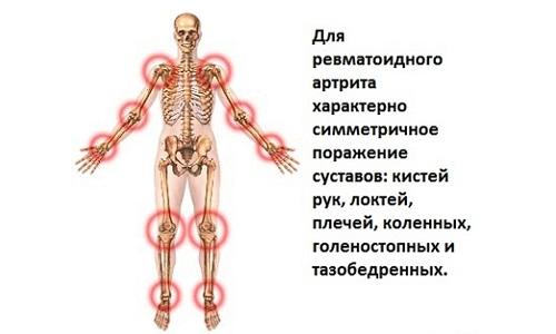 Поражение суставов ревматоидным артритом