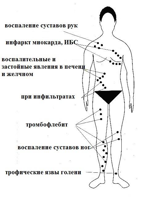 как правильно ставить пиявок на коленные суставы