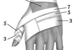 Этапы наложения повязки при вывихе большого пальца руки