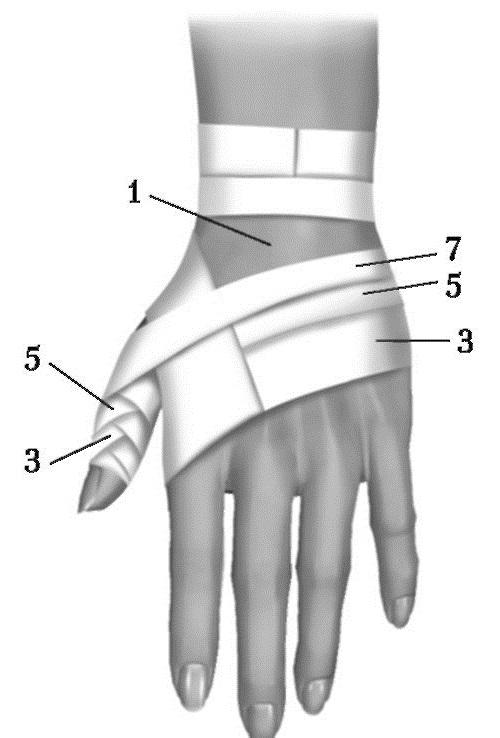 Вывих пальца руки: симптомы и лечение (фото и видео)