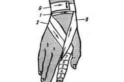 Последовательность наложения повязки на палец