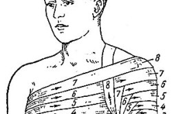 Этапы наложения повязки на плечо