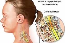 Повреждение спинного мозга - следствие компрессионного перелома позвоночника