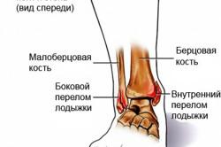 Перелом лодыжки - причина возникновения отека голеностопного сустава