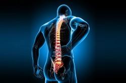 Боль в позвоночнике - симптом компрессионного перелома