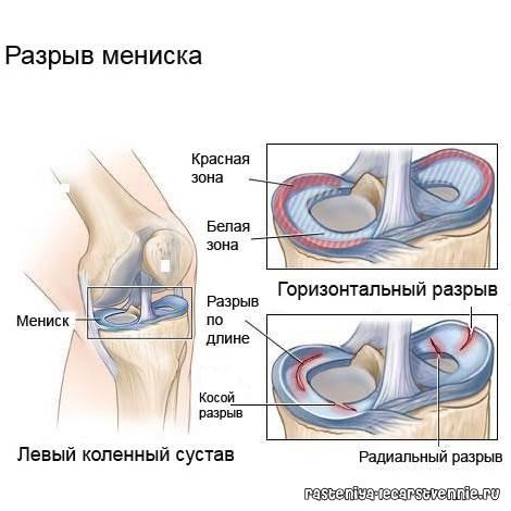 лечение когда опухают суставы